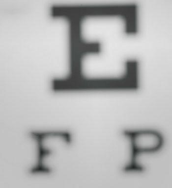 defectos refractivos del ojo