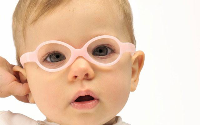 estrabismo en bebes