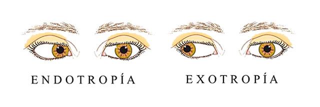 que es endotropia y exotropia