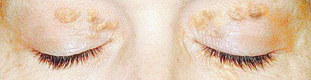 xantelasma en el parpado superior