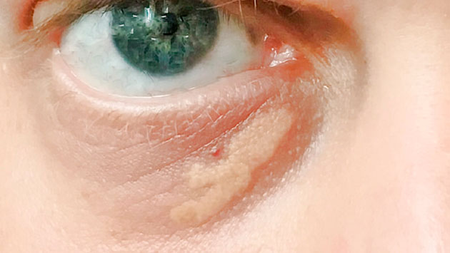 xantelasma palpebral