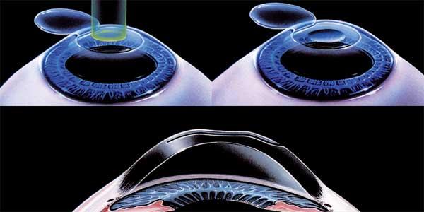 lasik hipermetropia