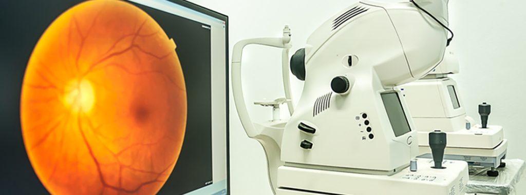 angiografia retina