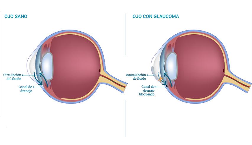 ojo sano y ojo con glaucoma