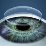 trasplante de cornea