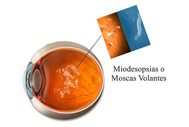 miodesopsias o moscas volantes