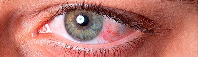 ojos rojos por alergia primaveral
