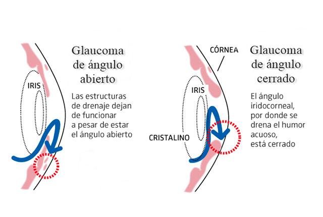 tipos de glaucoma angulo abierto y cerrado