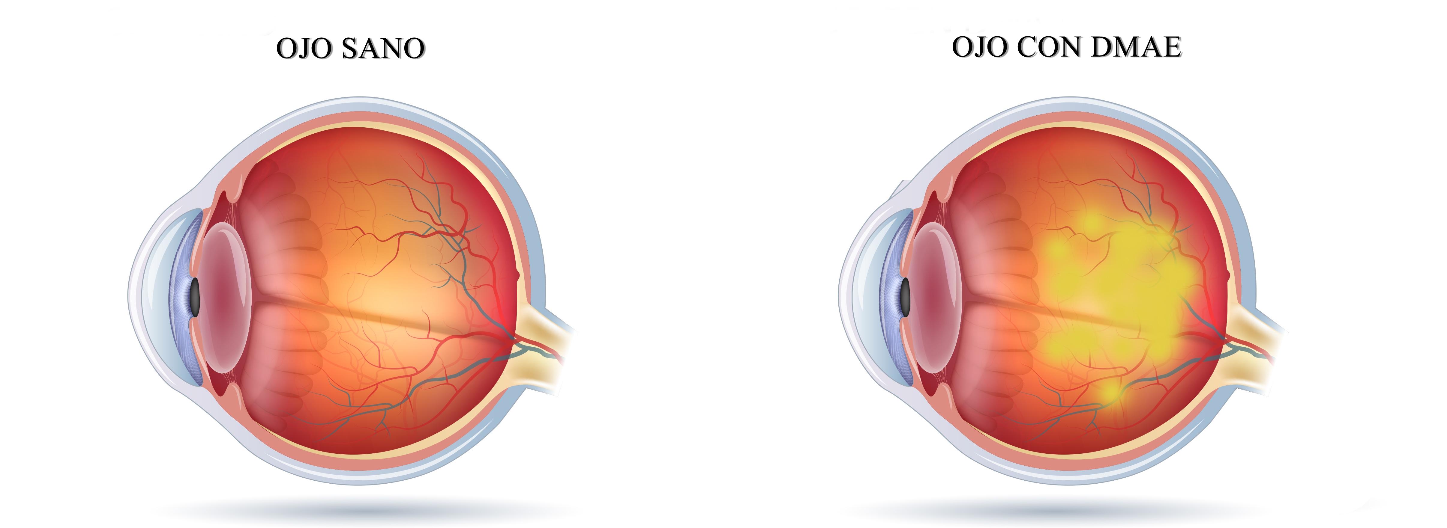 ojo con degeneración macular dmae
