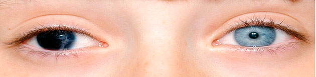 aniridia ojo sin iris