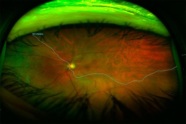 desprendimiento de retina enorme del ojo debido al almacenamiento de liquido