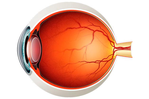 desprendimiento de retina vitreo posterior ojo