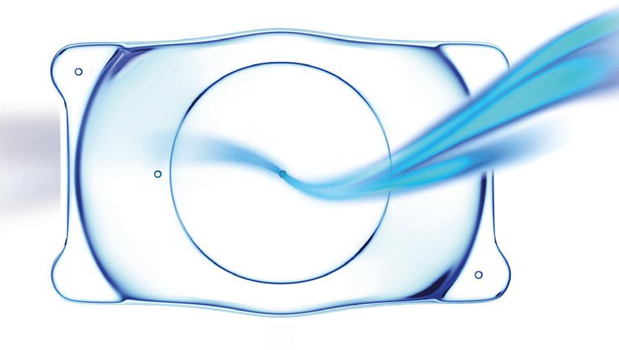 Implantación de lentes ICL en Madrid
