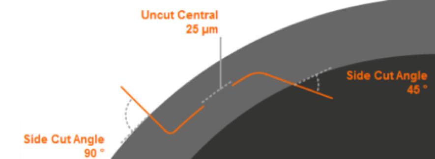incisiones arcuatas laser femtosegundo