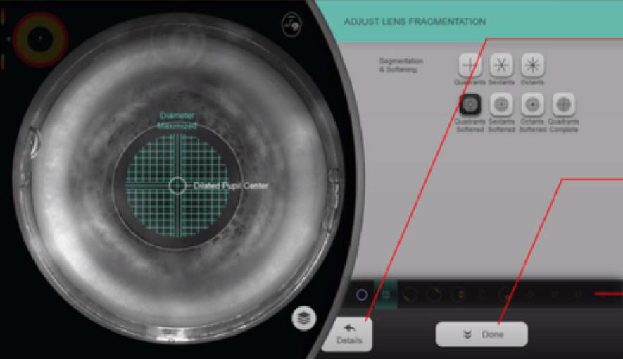 incisiones laser femtosegundo