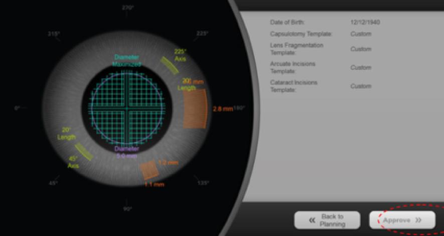 ventajas del laser de femtosegundo