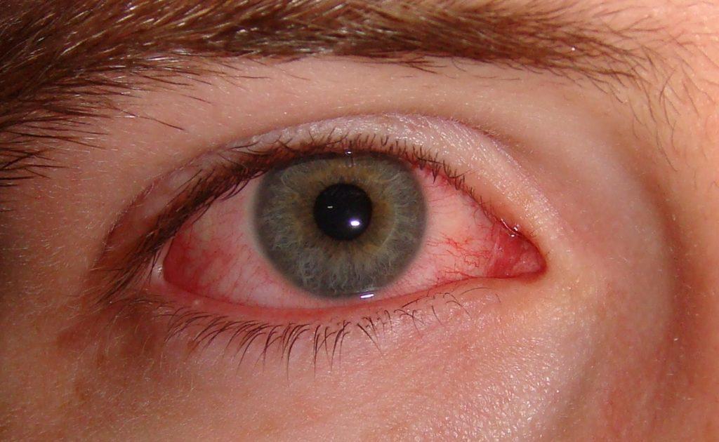 sintomas lagoftalmos