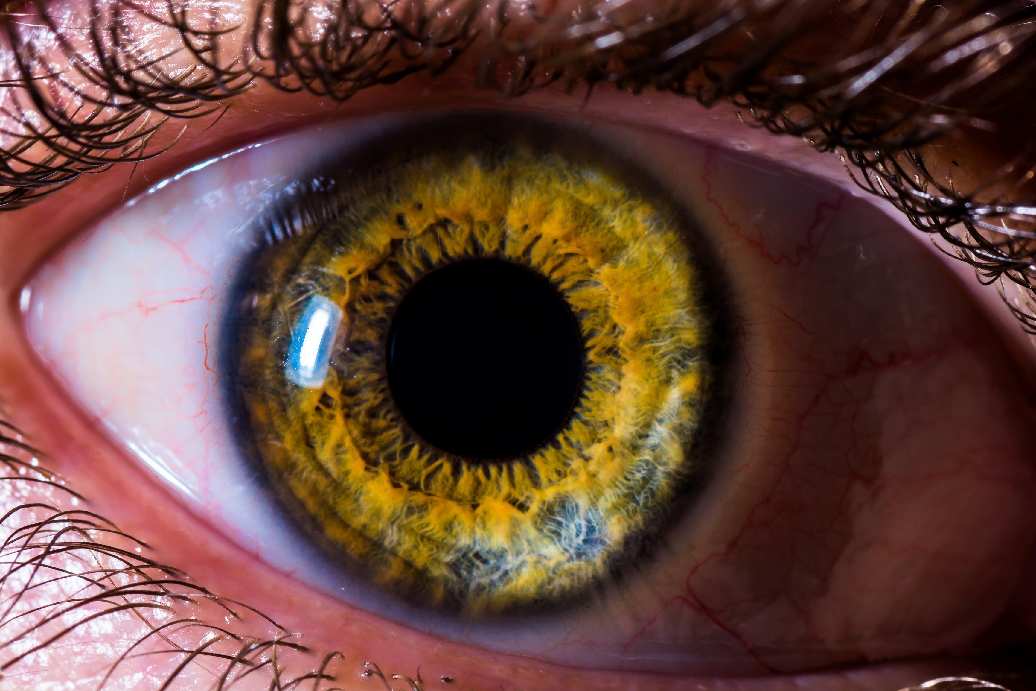 ojo con desprendimiento de retina