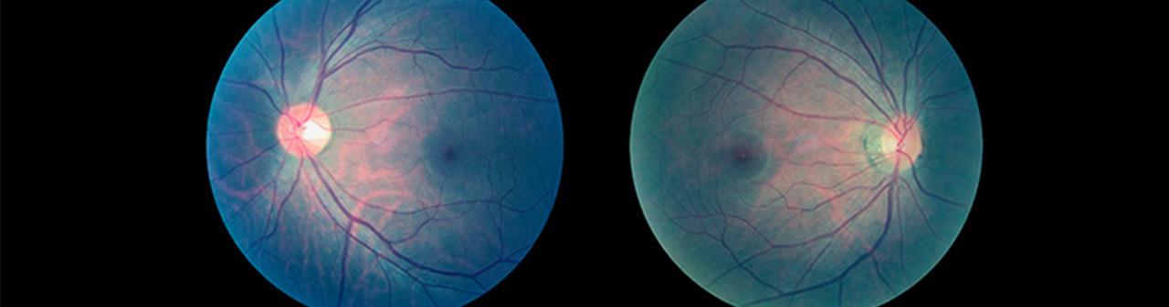 Qué es la angiografía ocular