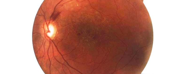 Cómo funciona el nervio óptico