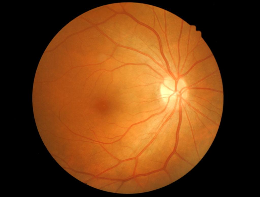 nervio óptico dañado