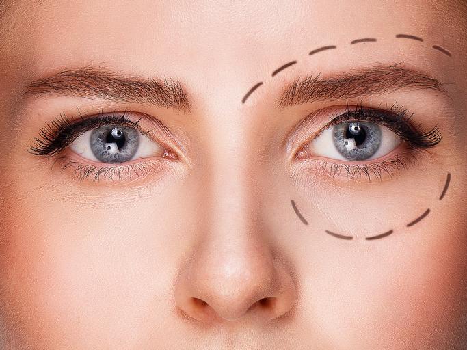 cirugia oculoplastia