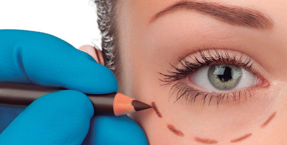 oculoplastia pre y postoperatorio