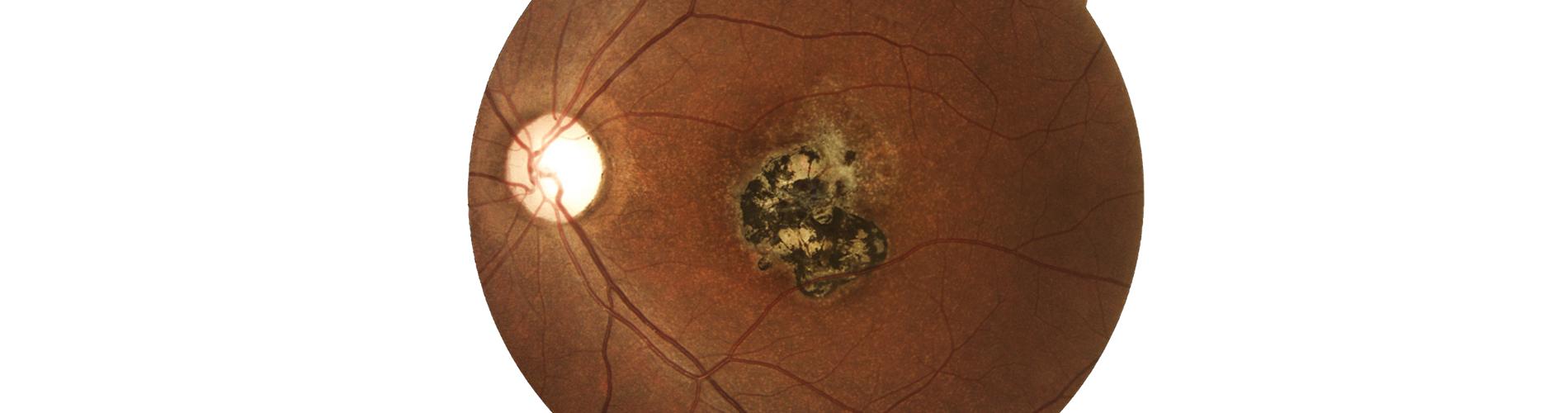 cómo medir la tensión ocular