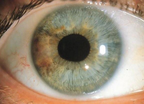 manchas oculares tipos y características