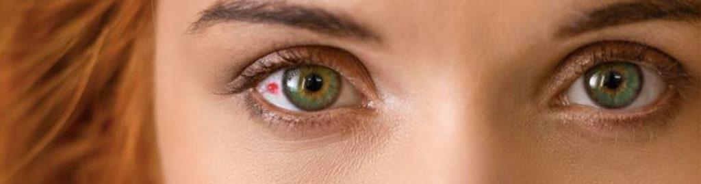 Mancha en el ojo. Tipos y ¿por qué se producen?