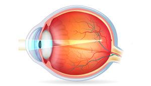 ¿Que és la miopía magna?