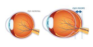 síntomas miopía