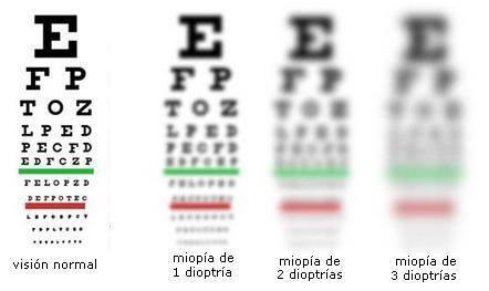 factores agudeza visual