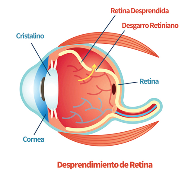 operación desprendimiento de retina