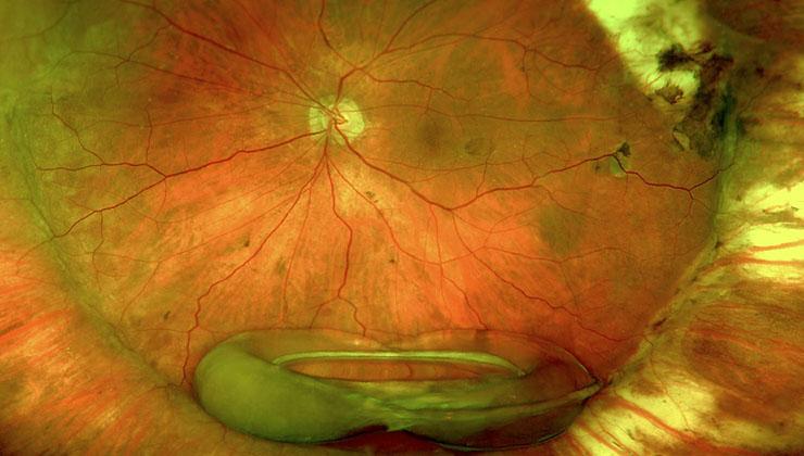 luxación lente intraocular