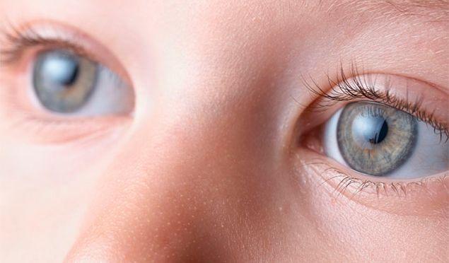 operación de miopía infantil