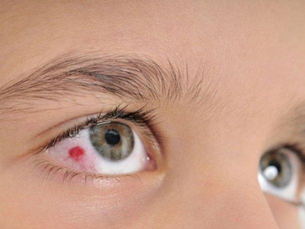 Derrame ocular