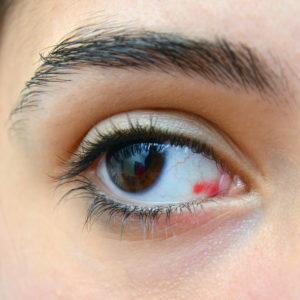 Derrame ocular tratamiento oftalmológico