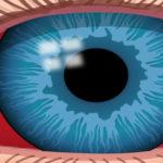 Derrame ocular sangre en los ojos