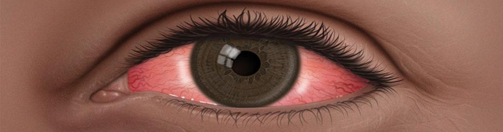 Dolor de ojos. ¿A qué puede deberse el dolor ocular?