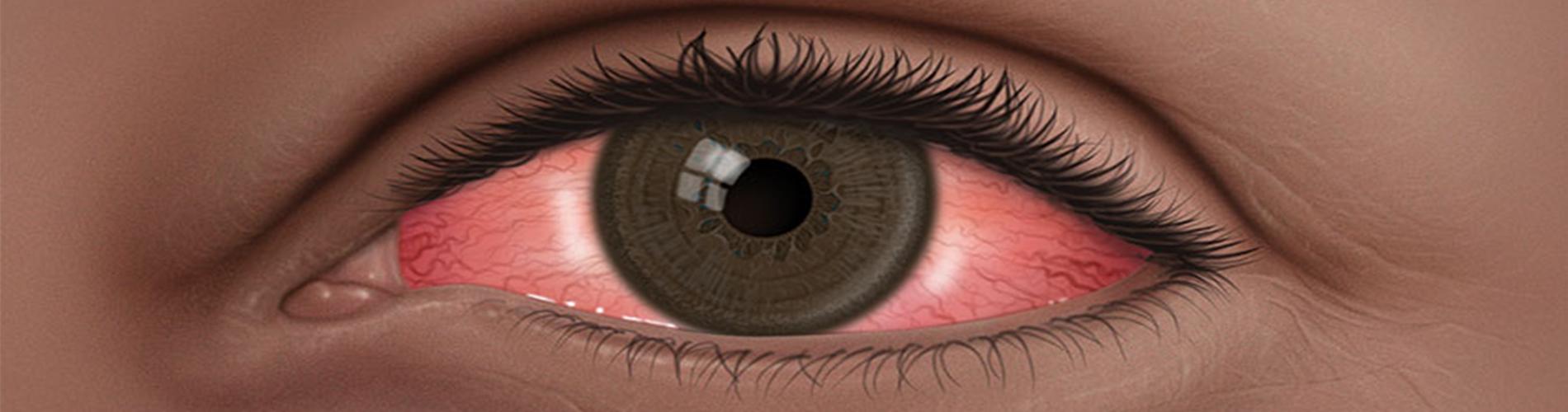 Dolor ojos