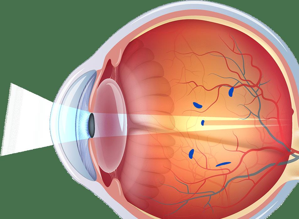 Miodesopsias causas