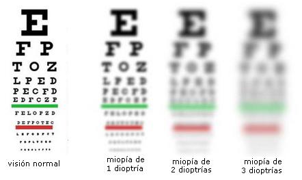 prevención de miopía