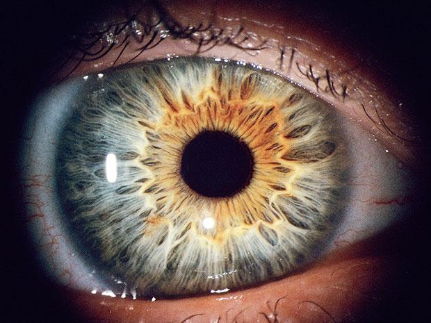 ¿Qué es el iris del ojo?