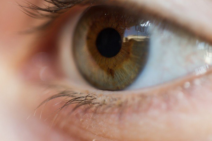 cambio de color de iris