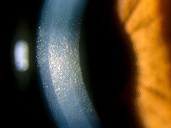 Córnea Guttata o Distrofia de Fuchs