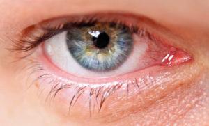 tensión ocular glaucoma