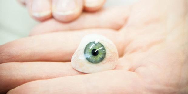 Prótesis Ocular
