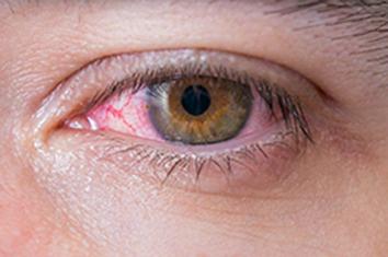 Síntomas y causas de la uveitis