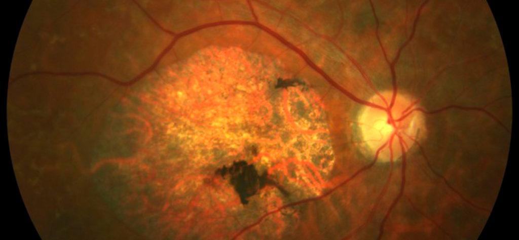 Retina, clave en el desarrollo de la visión infantil.